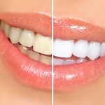 teeth_whitening_1000