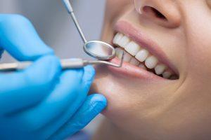 What is Gum Recession